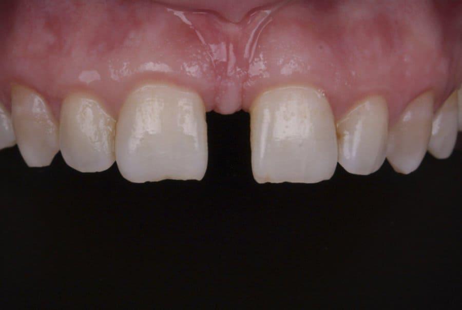 vestíbulo bucal anatomia