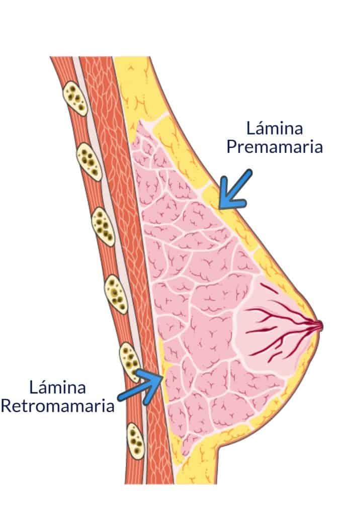 Paradigmia_Láminas_Mamarias