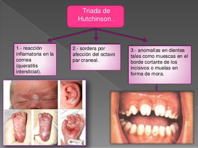 sífilis congénita síntomas triada de hutchinson