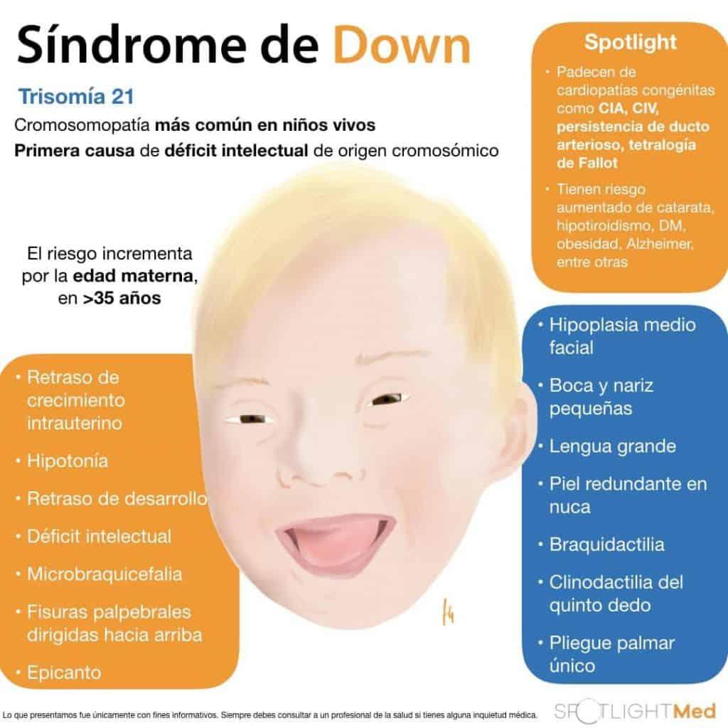 sd down