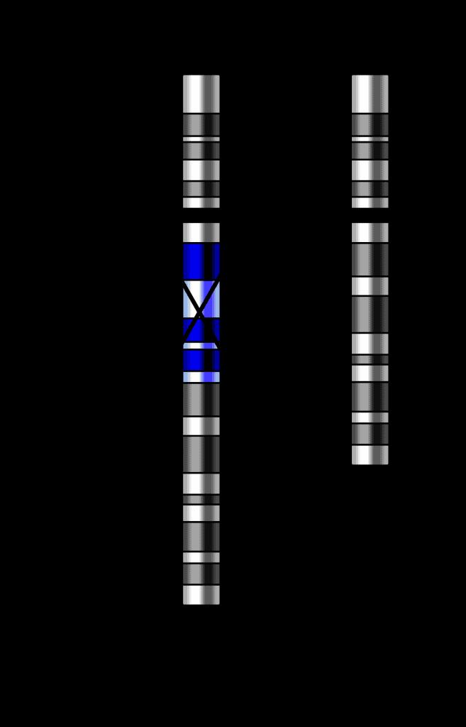 deleccion cromosomica