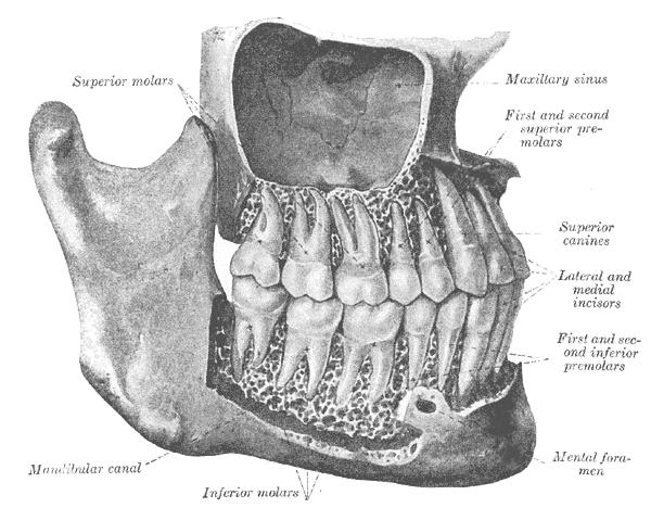 gonofosis