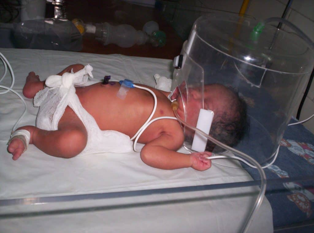 que es sepsis neonatal