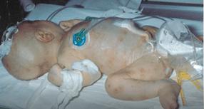 sepsis neonatal tardia