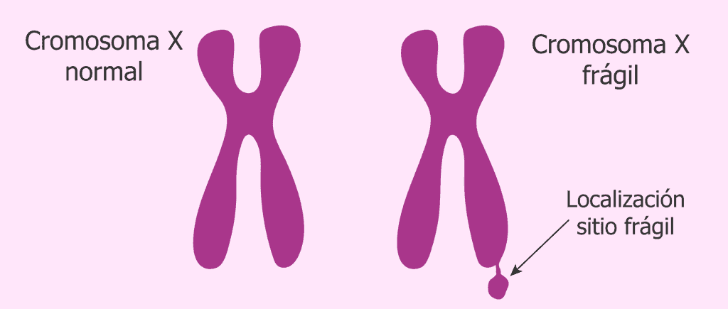 cromosoma x fragil
